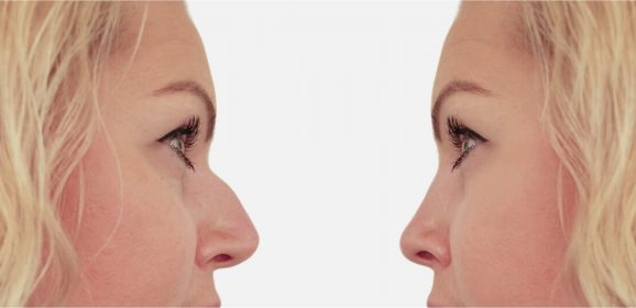 Rhinoplasty Prices and Financing Plans
