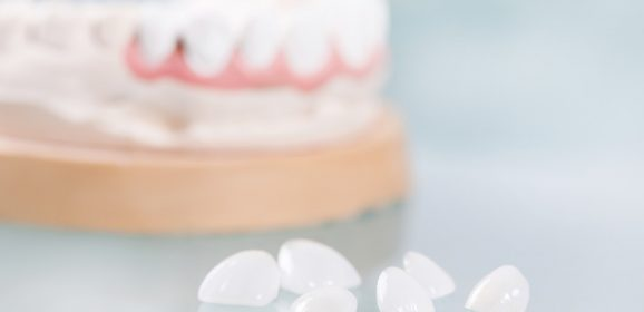 Cheap dental veneers: What you need to know